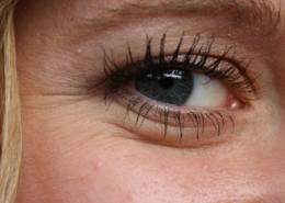 Auge mit Schlupflid